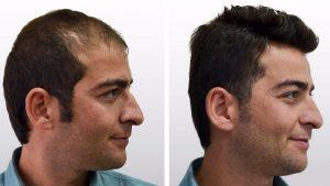 greffe cheveux tunisie - avant apres