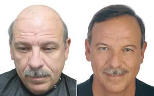 traitement alopécie ou calvitie prononcée