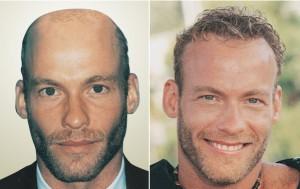 greffe cheveux tunisie avant/après