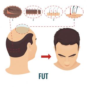 technique FUT tunisie