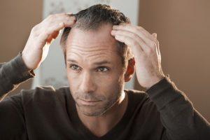 calvitie : problème de plusieurs hommes