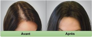 Resultat prp cheveux Tunisie