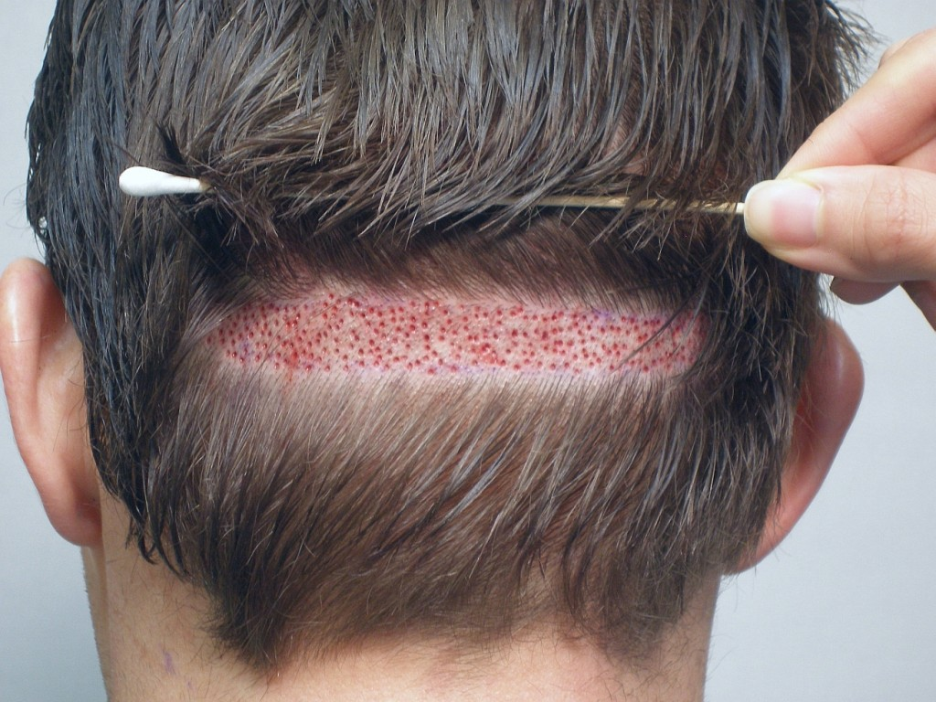greffe cheveux DHI tunisie