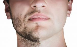 greffe barbe