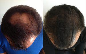 huile-ricin-greffe-cheveux