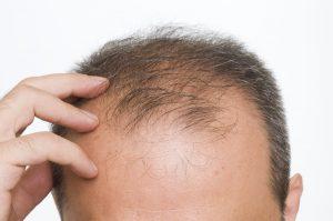 shockloss-greffe cheveux