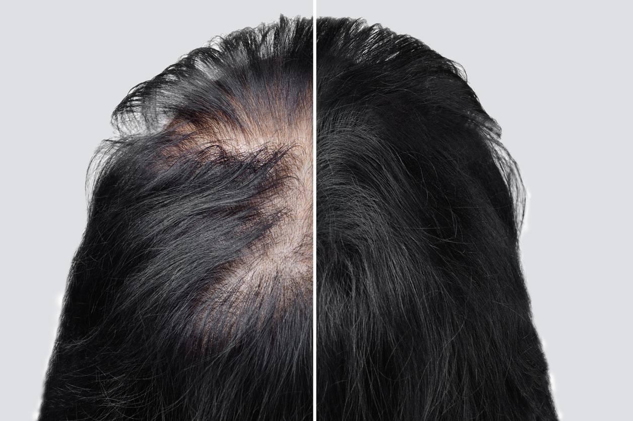 greffe cheveux robotisee ARTAS