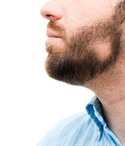 alopécie barbe