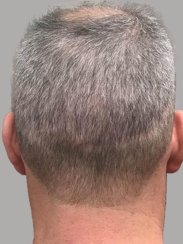 micropigmentation cheveux gris